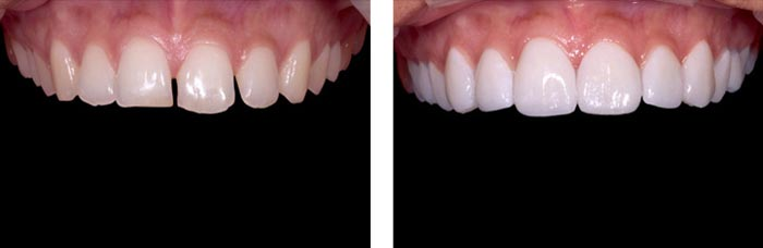 Porcelain Veneers In Bangalore