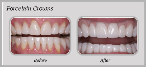 Porcelain Crowns In Bangalore