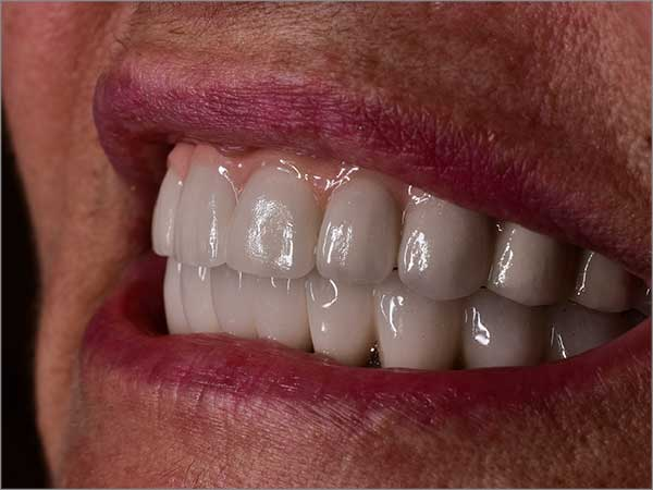 full-mouth-dental-implant