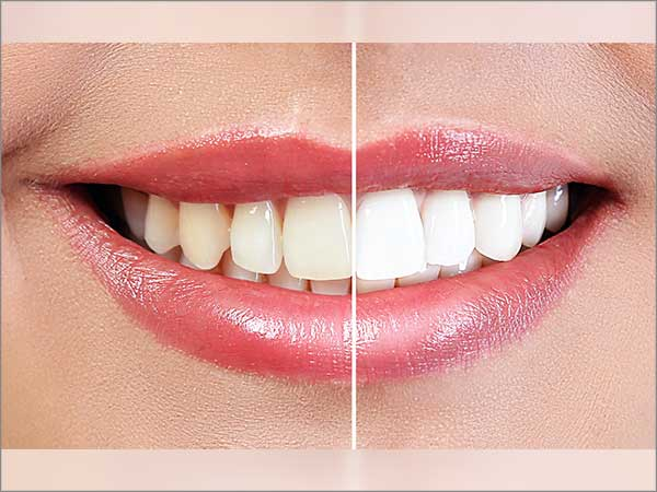 in-office-tooth-whitening