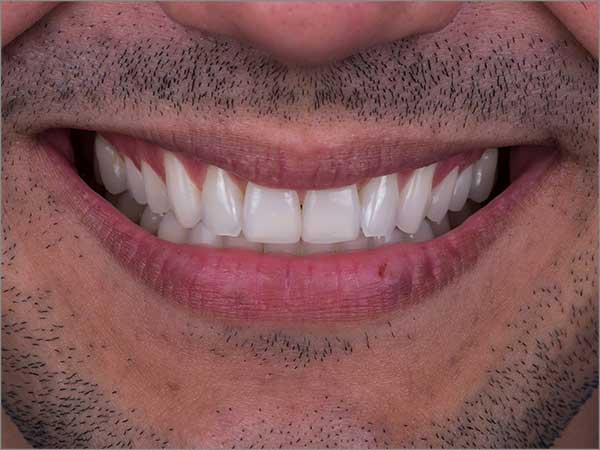 porcelain-veneers-images