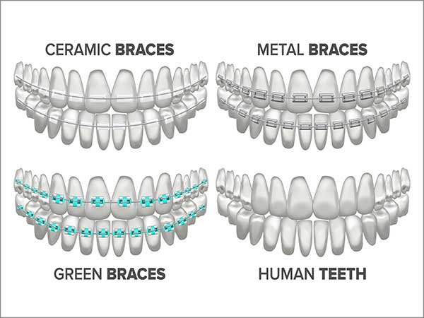 clear aligners in bangalore