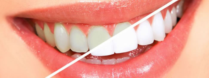 Office Tooth Whitening Treatment In Bangalore, India
