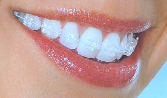 Ceramic Braces In Bangalore