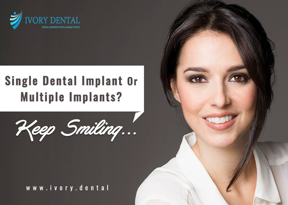 Multiple Dental Implant Bangalore