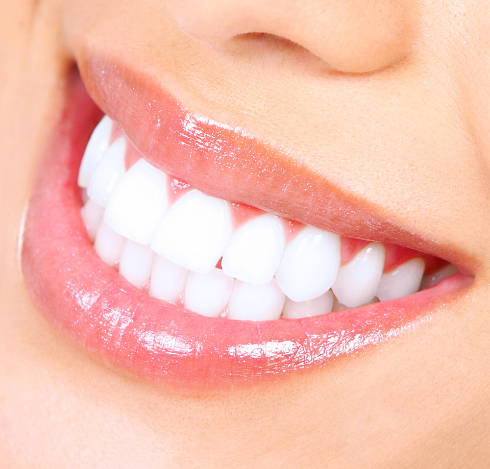 Tooth Whitening In Bangalore