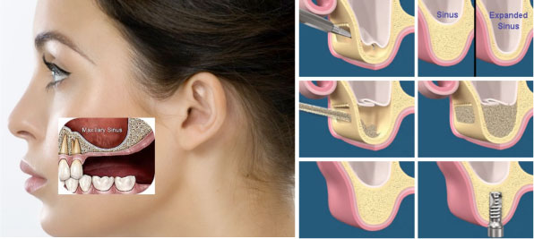 Sinus Lift Surgery In Bangalore