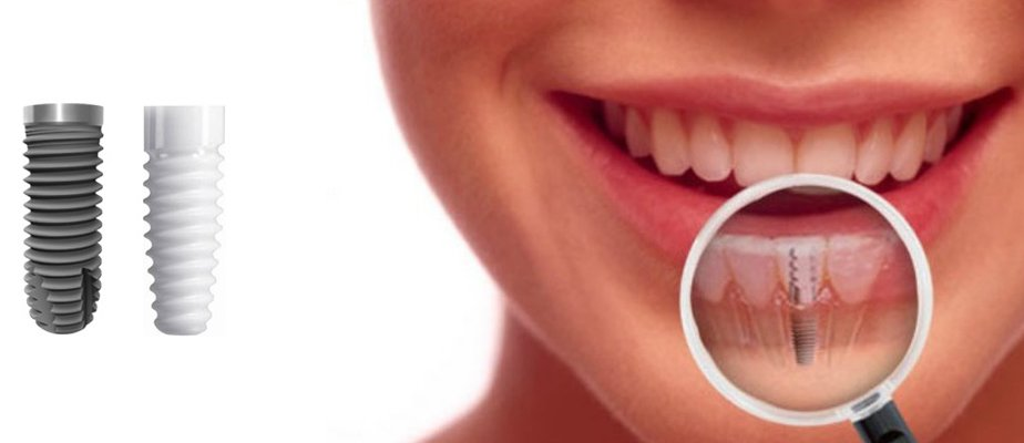 dental implants in bangalore, karnataka, india